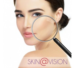 Skin@vision L'atelier des délices - Diagnostic de peau